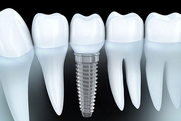 DentaMedics – Implantate